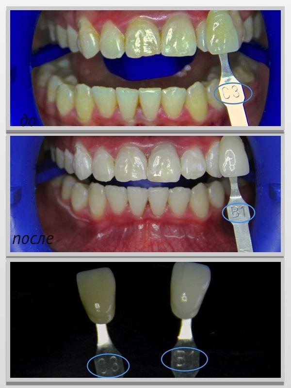 отбеливание зубов zoom 3 акция в москве