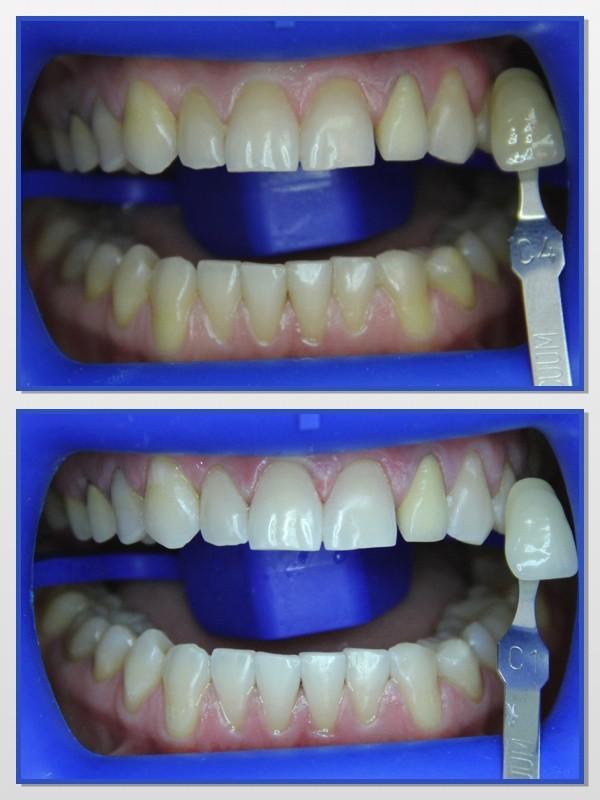 Таблица зубной эмали